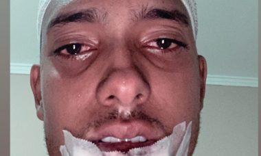 MC Brinquedo sofre acidente de moto dias depois de abandonar redes sociais. Foto: instagram