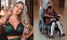 Carol Narizinho tem alta do hospital após fazer lipo e preenchimento no bumbum