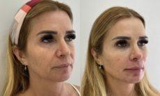 Antes e depois: Mãe de Viih Tube, do BBB 21, faz harmonização facial