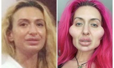 Mulher com as maiores maçãs do rosto do mundo choca com antes e depois