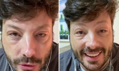 """Danilo Gentili tem crise alérgica por conta de medicamento: """"Passei por maus bocados"""""""