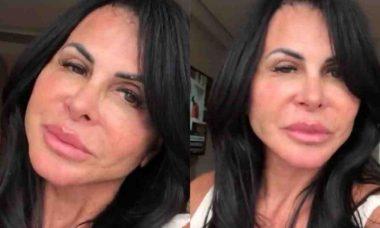 Gretchen fala sobre resultado de cirurgia plástica: 'já estou me amando'