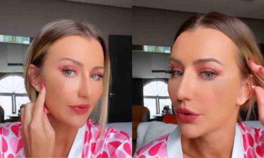 Ana Paula Siebert exibe curativos no rosto após procedimento estético