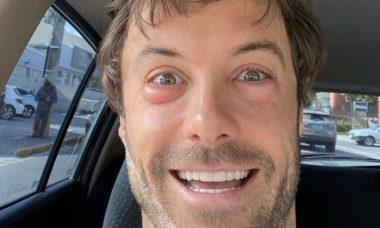 """Kayky Brito sofre reação alérgica e brinca: """"Rir para não chorar"""""""