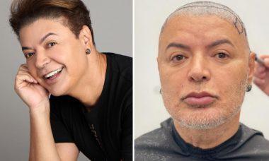 "David Brazil mostra resultado de procedimento estético: ""Me sentindo a Gretchen"""