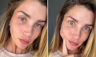 """Aline Gotschalg para de usar filtros nas redes sociais: """"Não estava me reconhecendo"""""""