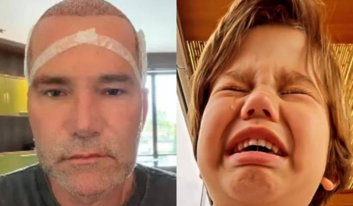 Márcio Poncio faz transplante capilar, e neto chora ao vê-lo: 'ficou careca'